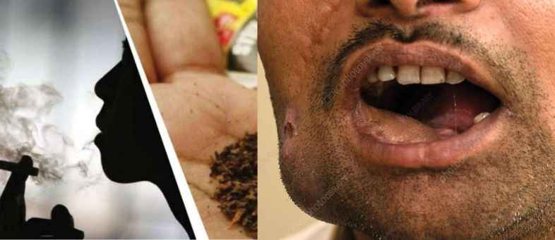 Ahmedabad has the highest number of oral cancer cases in the country due to smoking.jpg
