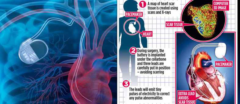 Advanced technology for heart disease is coming in near future.jpg